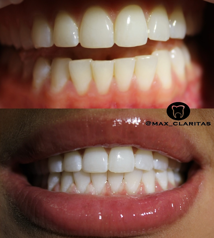 отбеливание зубов в спб цены отзывы